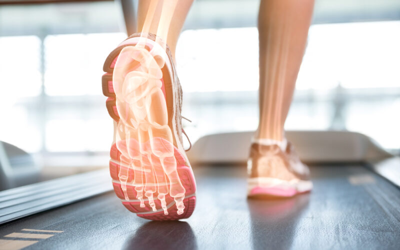 voet peesplaatontsteking